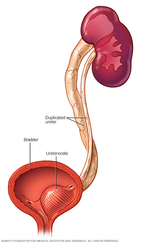 Illustration showing a cutaway view of the bladder with a ureterocele inside and two ureters coming into the bladder.