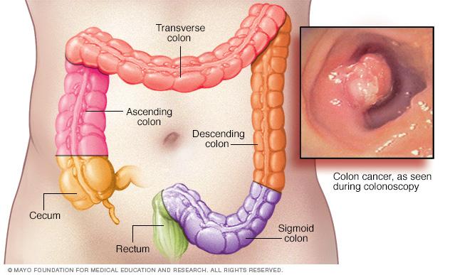 cancer de colon operacion