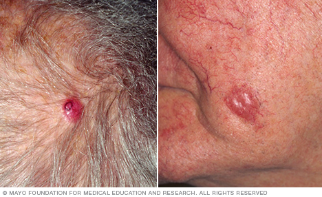 Photograph showing Merkel cell carcinoma