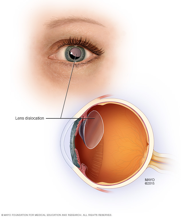 Dislocated lens within the eye