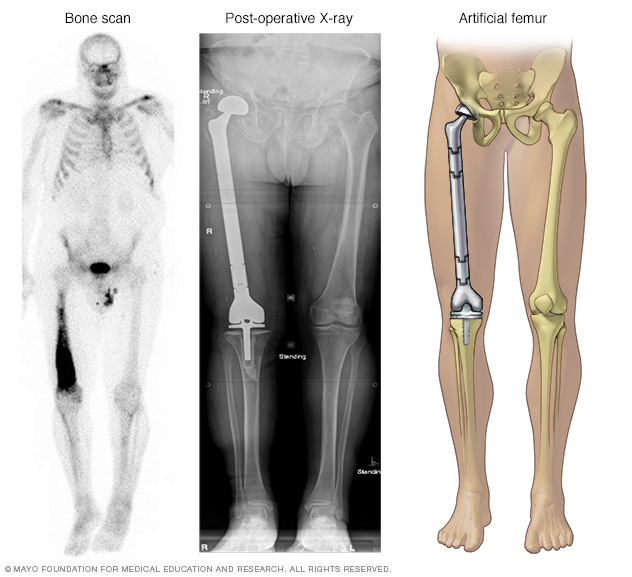 Cancerous thighbone replaced with artifical femur