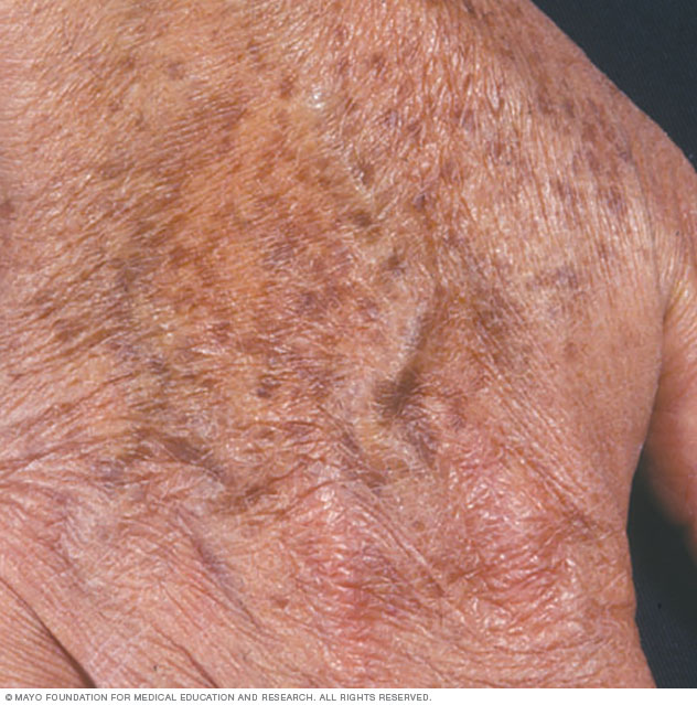 Age spots on the hand
