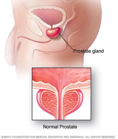 prostatitis and alcohol Krónikus prosztatitis kezelés antibiotikumok