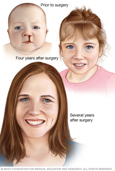 Cosmetic results of cleft lip repair
