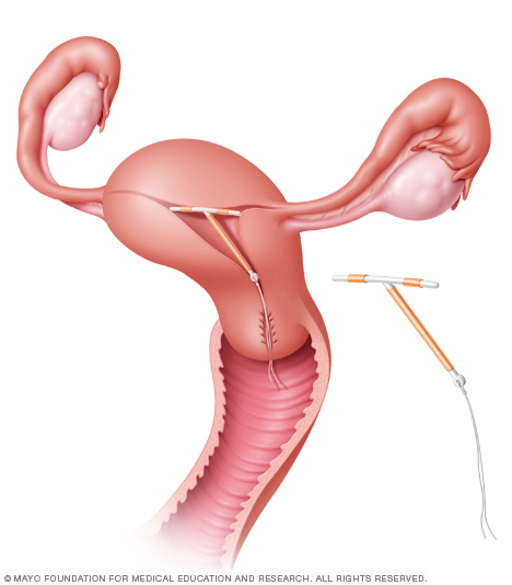 ParaGard IUD in place in the uterus