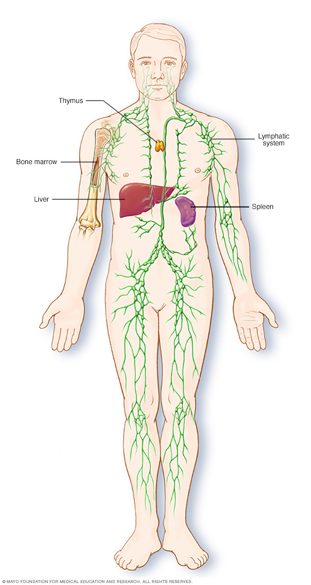 cancer sistema linfatico hodgkin