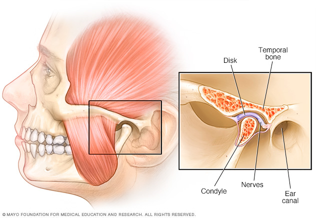 Tmj Disorders Middlesex Health