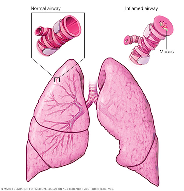 Asthma Middlesex Health