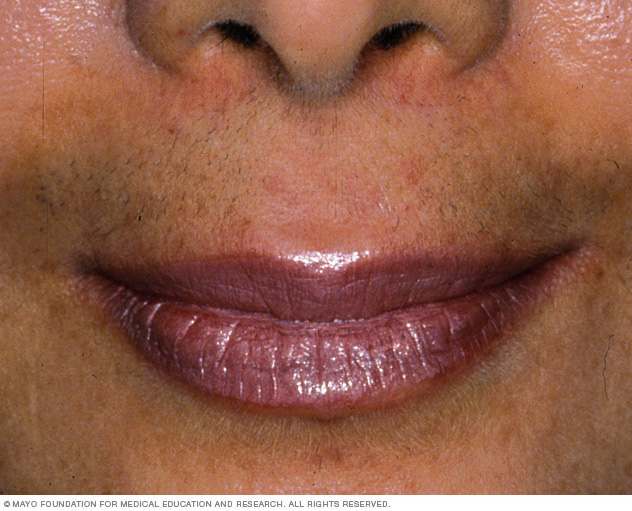 Image of hirsutism
