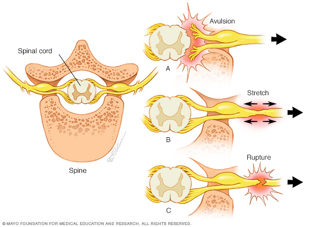 Avulsion, stretch and rupture types of nerve injuries
