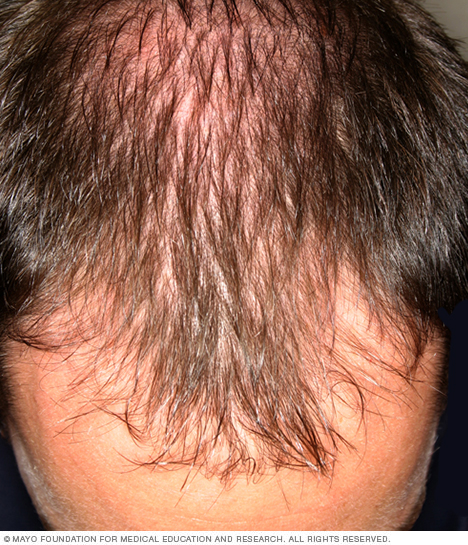 Photograph showing male-pattern baldness