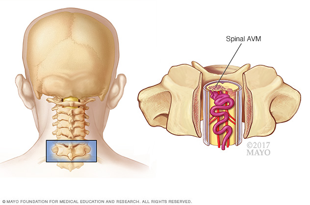 Spinal arteriovenous malformation (AVM)