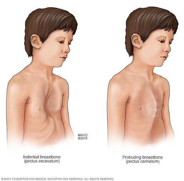 Chest abnormalities