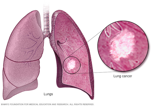 Illustration shows lung cancer
