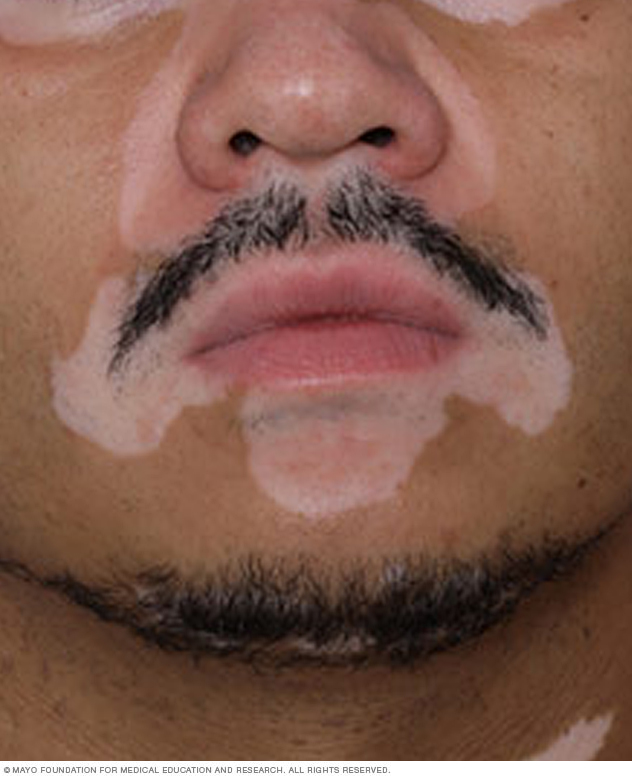 Vitiligo Middlesex Health