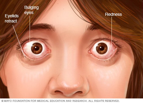 Eye complications associated with Graves' disease