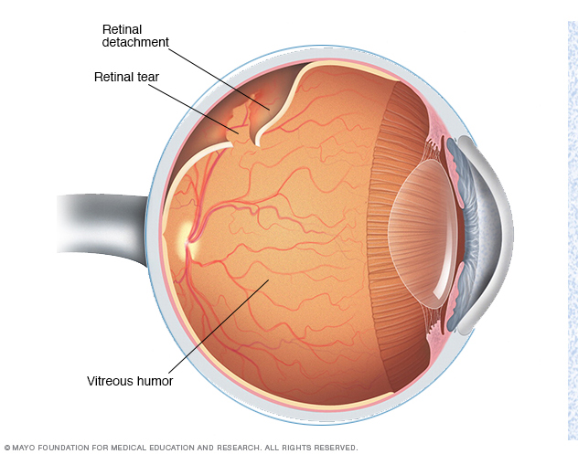 Retinal detachment // Middlesex Health