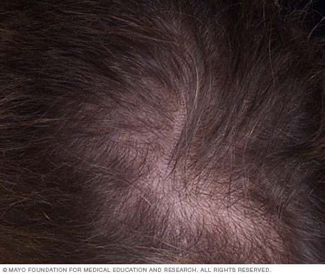 Photograph showing female-pattern baldness