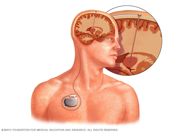 Electrode placement and device location in deep brain stimulation
