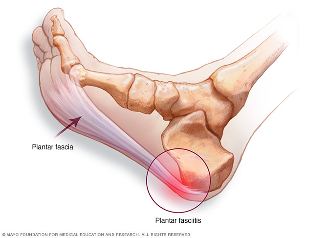 Plantar fascia and location of heel pain