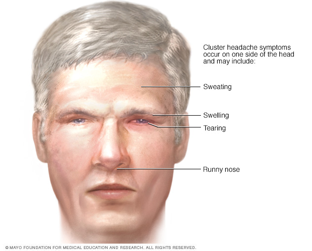 Cluster headache signs and symptoms  affecting the face