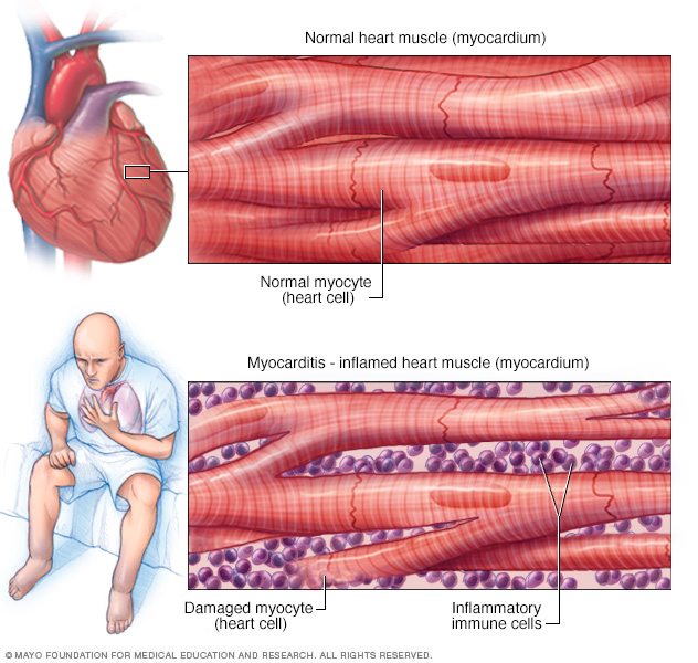 Inflammation of the heart muscle (myocarditis).