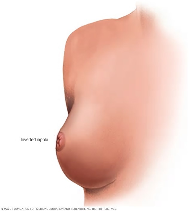 Illustration of an inverted nipple