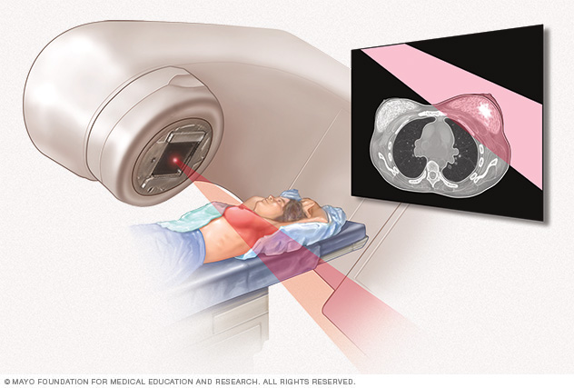 Radiation therapy for breast cancer