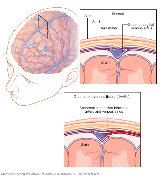 Dural arteriovenous fistula formation in the brain