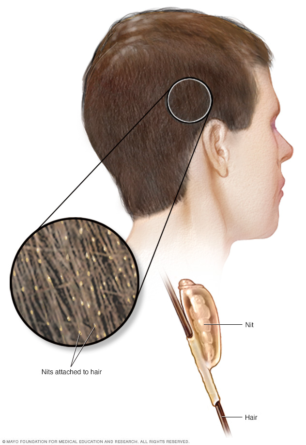 Head lice // Middlesex Health
