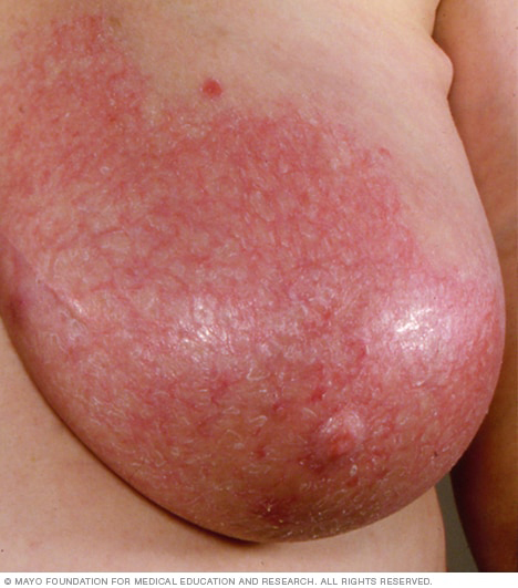 A woman with mastitis