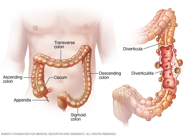 Pouches in digestive tract