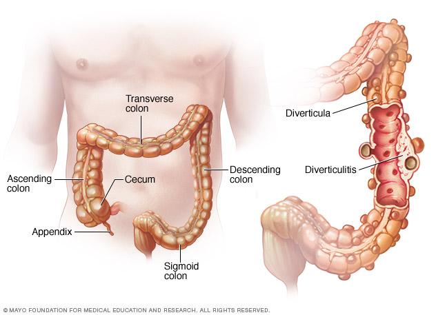 Diverticulitis Middlesex Health