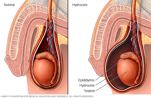 Illustration of hydrocele