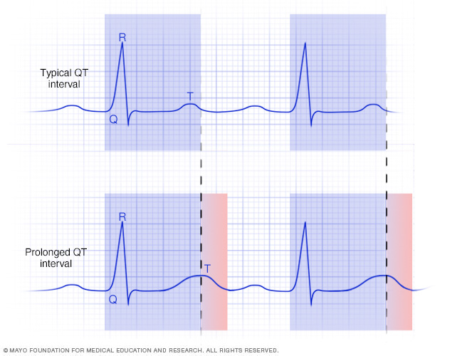 A normal and prolonged QT interval