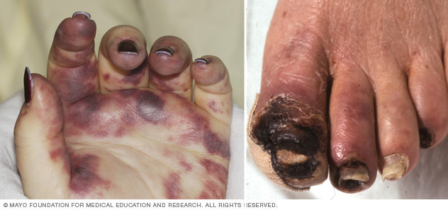 Images showing gangrene of the hand and foot