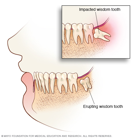 Erupting and impacted wisdom teeth
