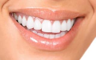 שיניים לאחר הלבנה לא מזיקה