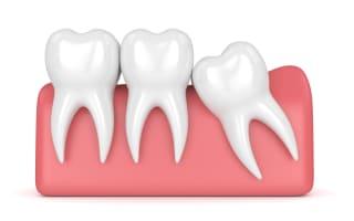 שן בינה כלואה שלא עקרו