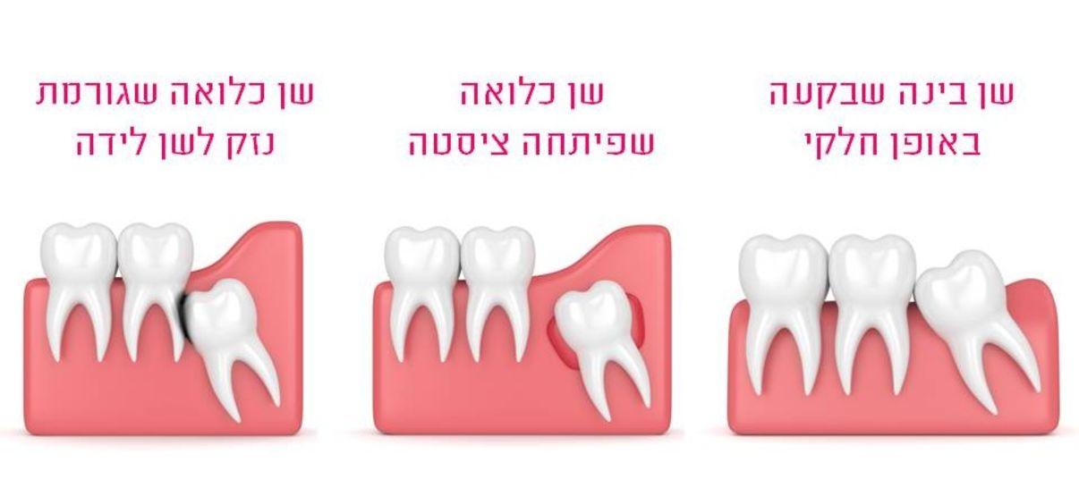 סיבות לעקירת שן בינה