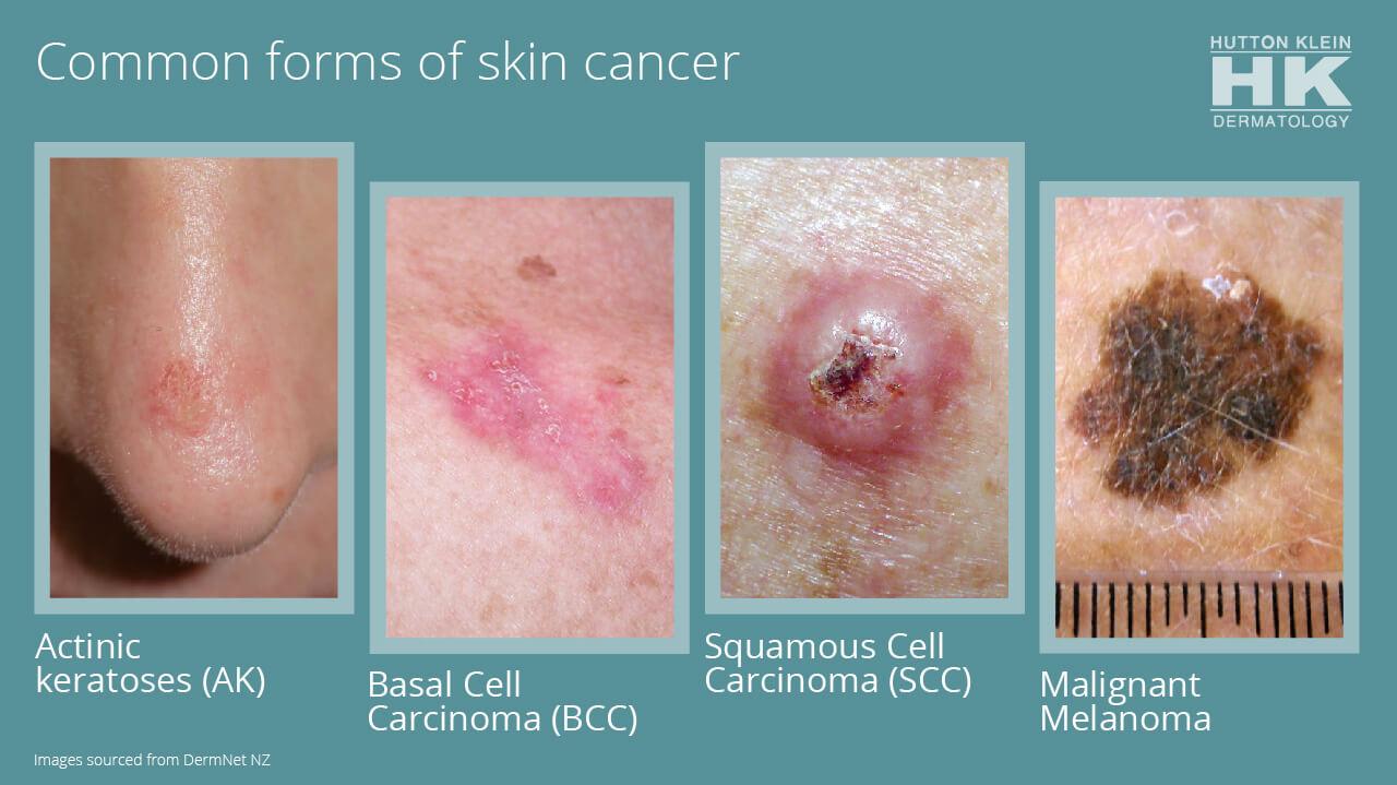 Wart remover on skin cancer. Tratamentul paraziților din tiumen