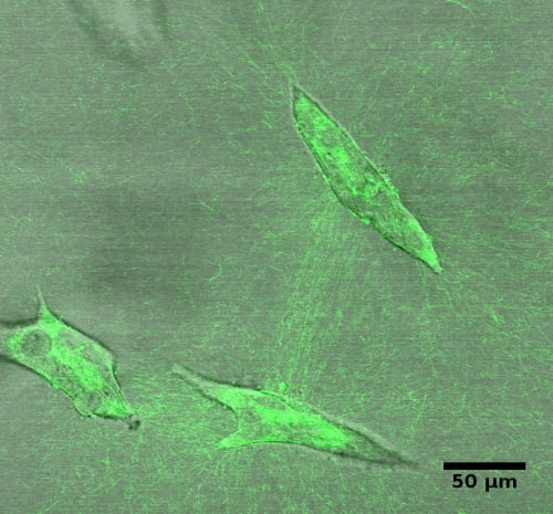 Collagen fibers and breast epithelial structures after 6 days in culture.