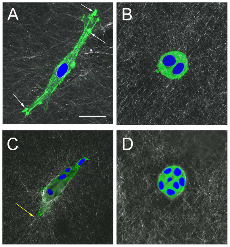 F-actin organization in epithelial cells forming acinar and ductal structures.