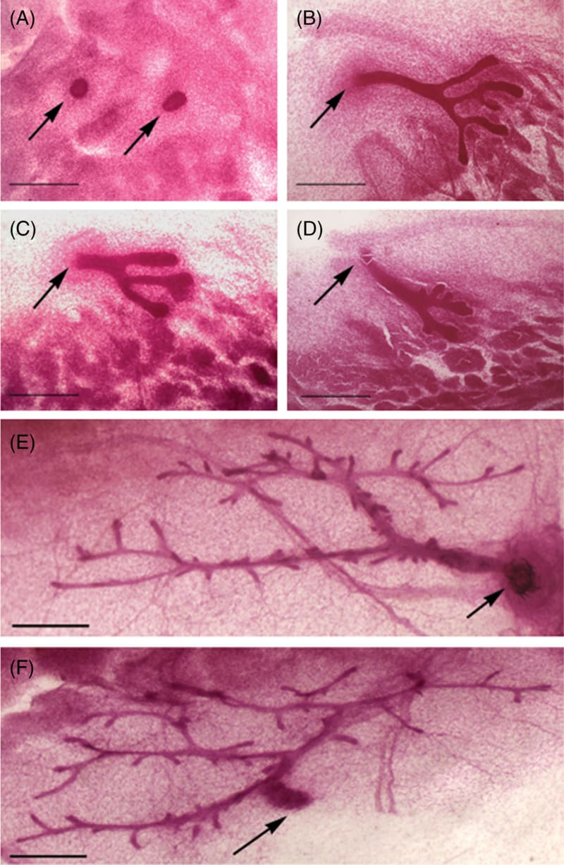 Ductal development in whole mounts   of mammary glands from C57Bl6 mice illustrates the principle of never identical iterations on the branching pattern of a ductal system.