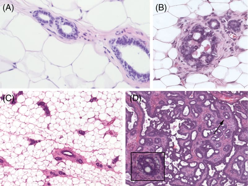Complexity versus organization. Panel A shows   cross-sections of normal mammary gland ducts. Panel B shows a cross-section of a ductal carcinoma in situ.