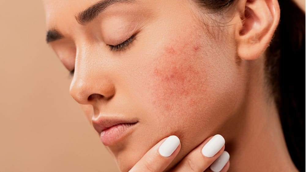 Period Acne: Signs, Causes & Best Remedies