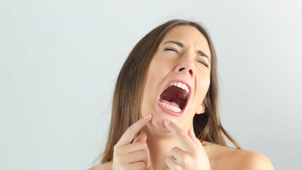 Pimples Due to Dandruff