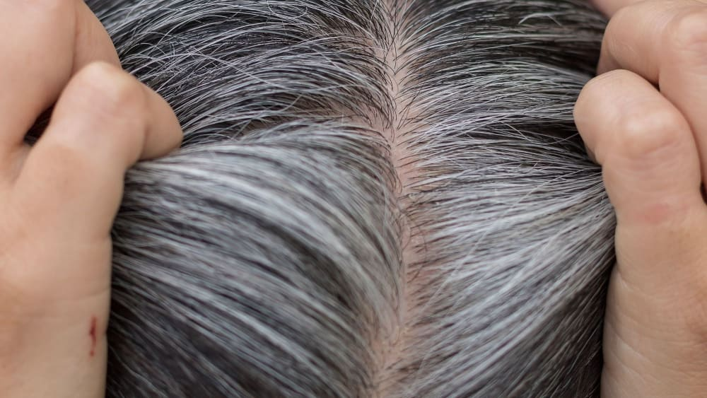 Top Grey Hair Treatment to Prevent White Hair From Spreading
