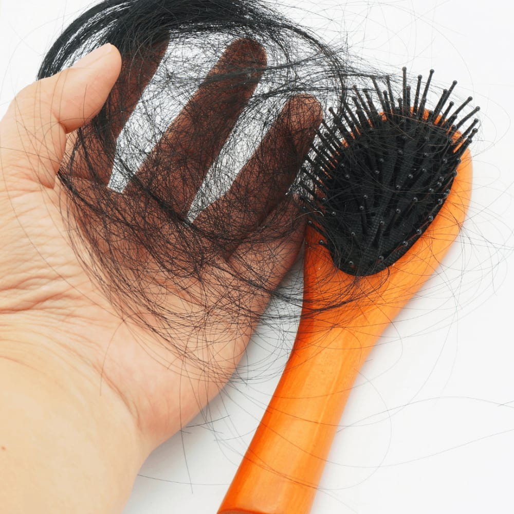 PCOS Hair Loss - Signs & Treatment