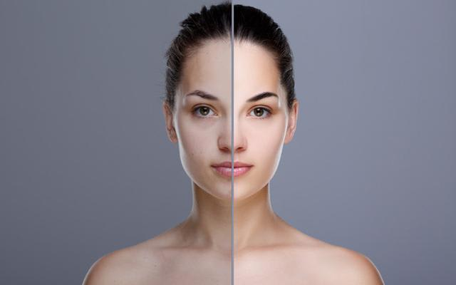 uneven-skin-tone-before-and-after